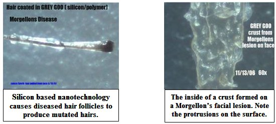 The Kick Them All Out Project - Morgellons Disease